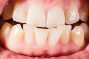 Closeup of crooked teeth
