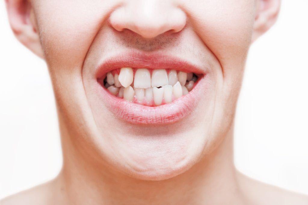 Boy with crooked teeth