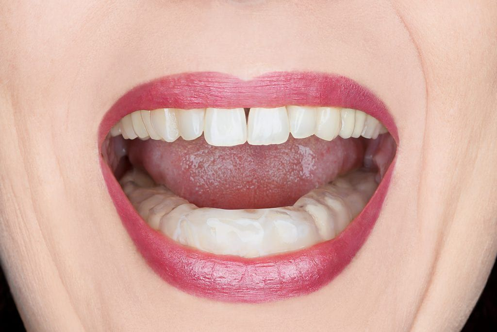 Woman wearing a mouth guard on her lower teeth